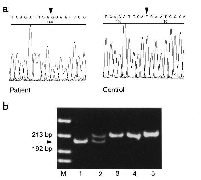 Identification of the DAX1 missense mutation. (a) Chromatogram showing t...
