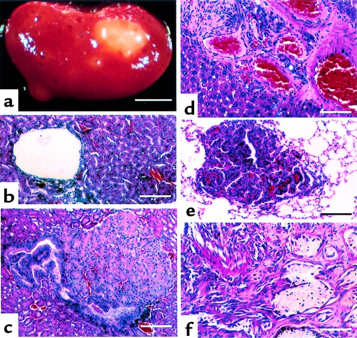 Tumors occurring in Tsc2+/– mice. (a–c) Renal lesions. (a) Gross externa...