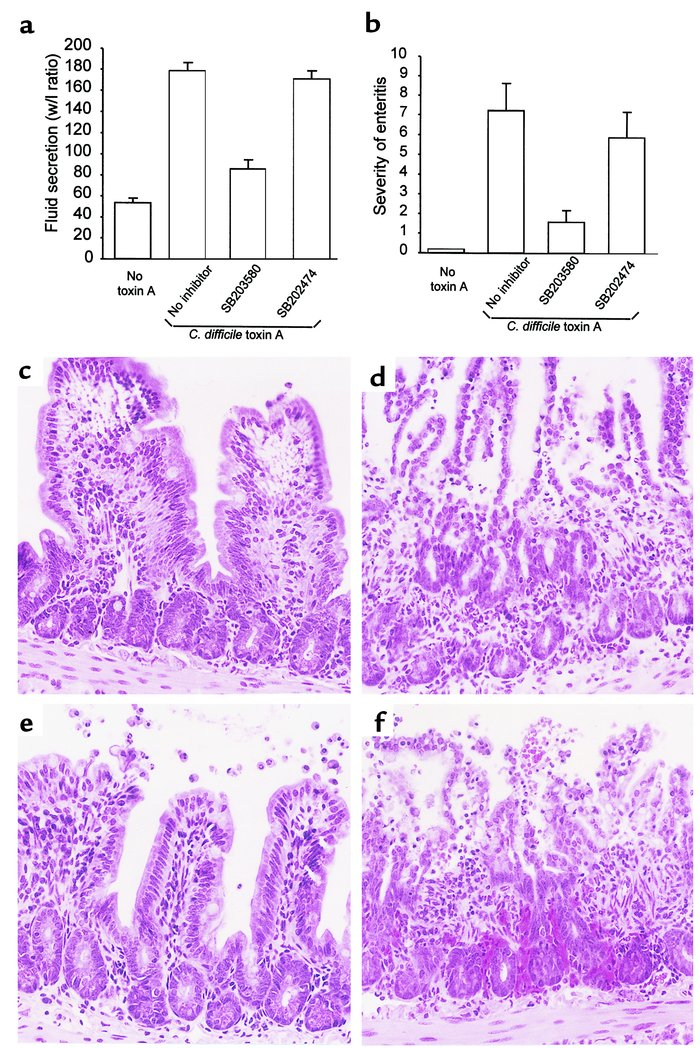 Inhibition of p38 MAP kinase prevents toxin A–induced enteritis in mouse...