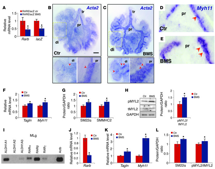 Disruption of RA signaling leads to aberrant expression of SM markers in...