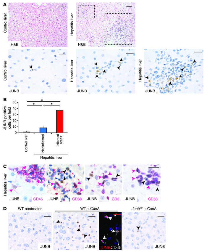 JUNB expression in immune cells from livers of patients with hepatitis. ...