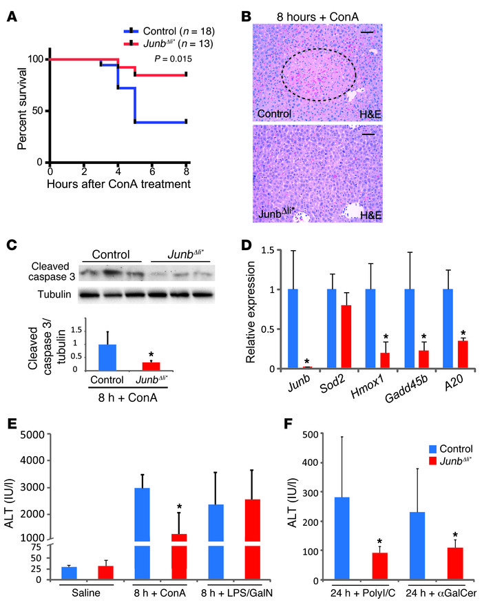 JunbΔli* mice are protected from liver damage upon ConA, αGalCer, and p...