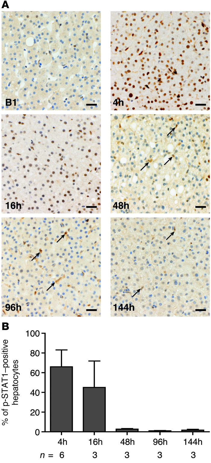 pegIFN-α2b transiently induces the Jak/STAT pathway in the liver. (A) Re...