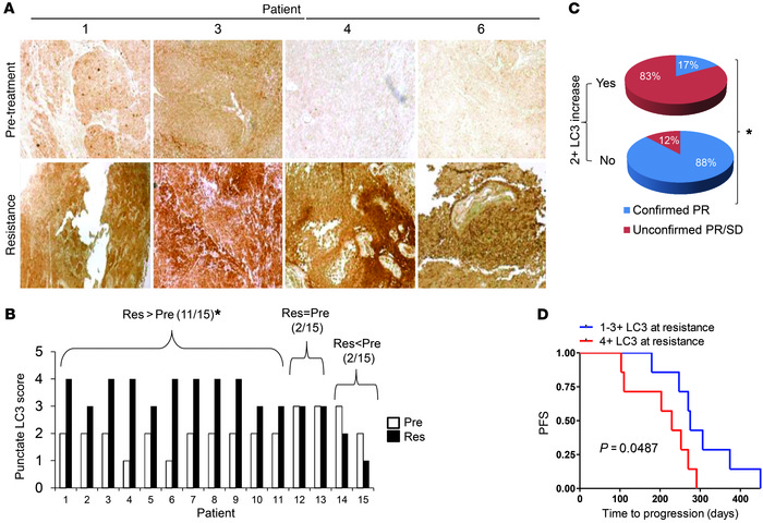 BRAFi induces autophagy in the tumors of BRAF mutant melanoma patients. ...