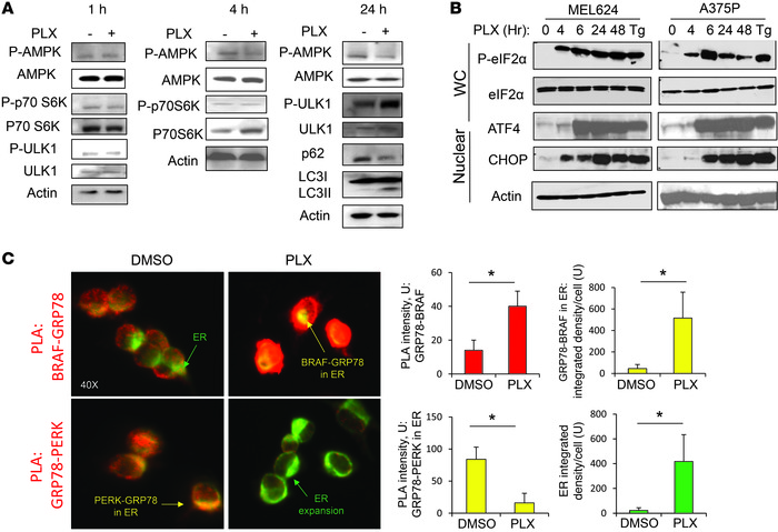 BRAFi induces an early ER stress response. (A) Immunoblotting against th...