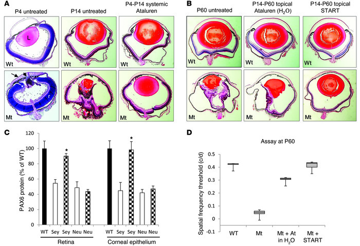 Postnatal treatment of Pax6 mice with ataluren.   (A) Effect of systemic...