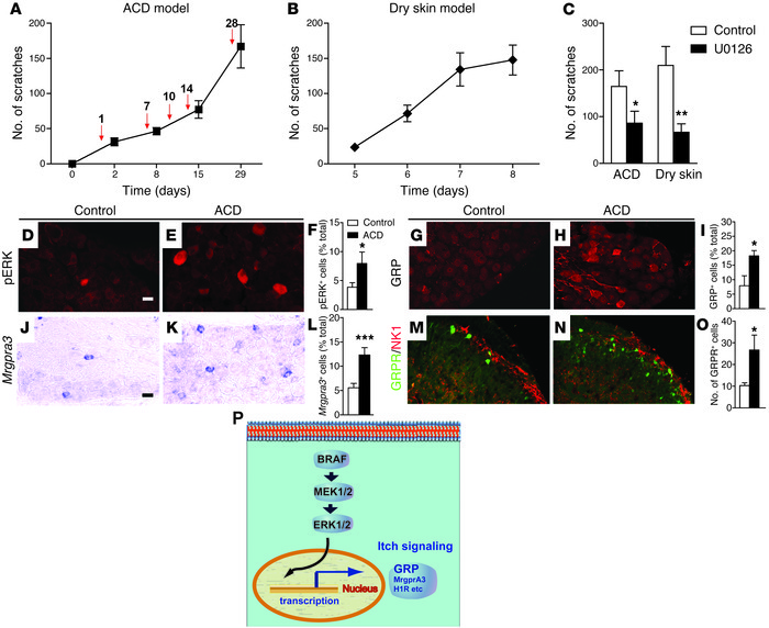 Mice with ACD- and dry skin–induced itch recapitulate the phenotype of B...