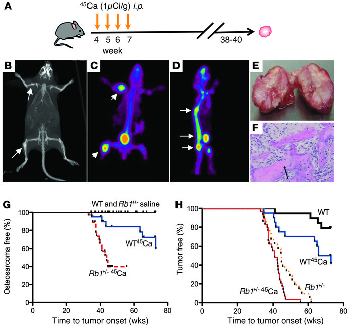 Rb1+/– mice are predisposed to the development of 45Ca-induced osteosar...