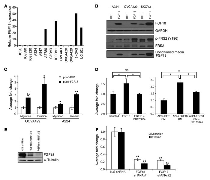 Oncogenic effects of FGF18 on ovarian cancer cells in vitro. (A) qRT-PCR...