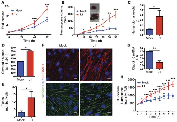 L1 confers an angiogenic phenotype to ECs and enhances endothelial perme...