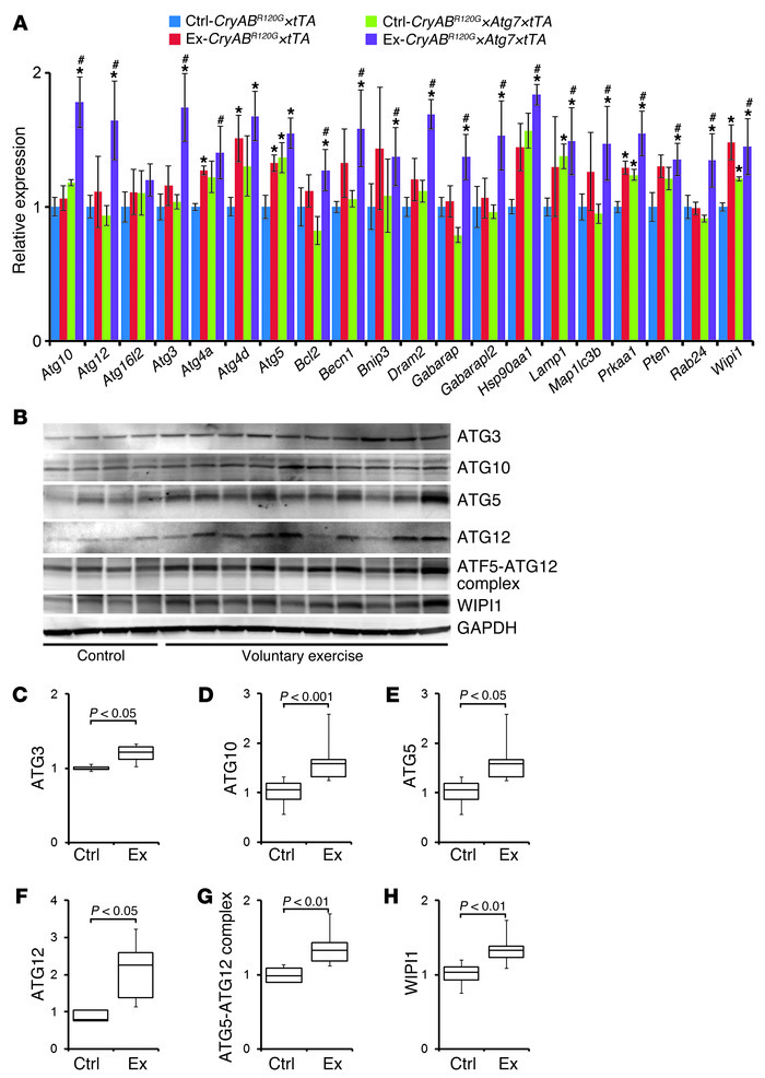 Autophagy response in exercised CryABR120G×Atg7×tTA mouse hearts.   (A) ...