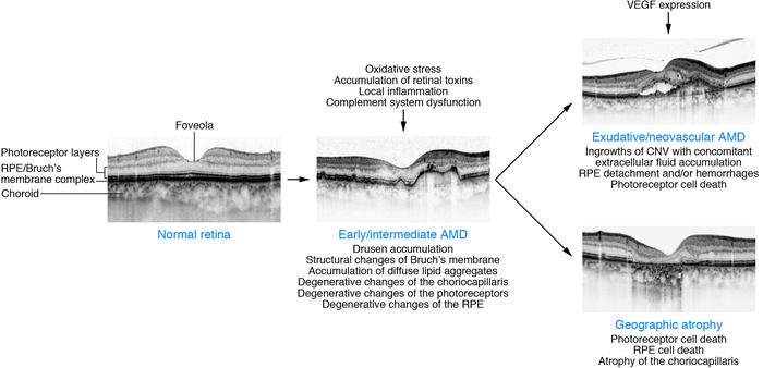 Schematic showing morphological changes in the macula during evolution o...