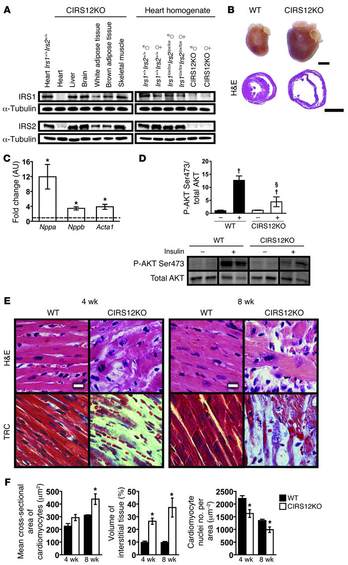 Impaired insulin-mediated signaling and loss of cardiomyocytes in CIRS12...