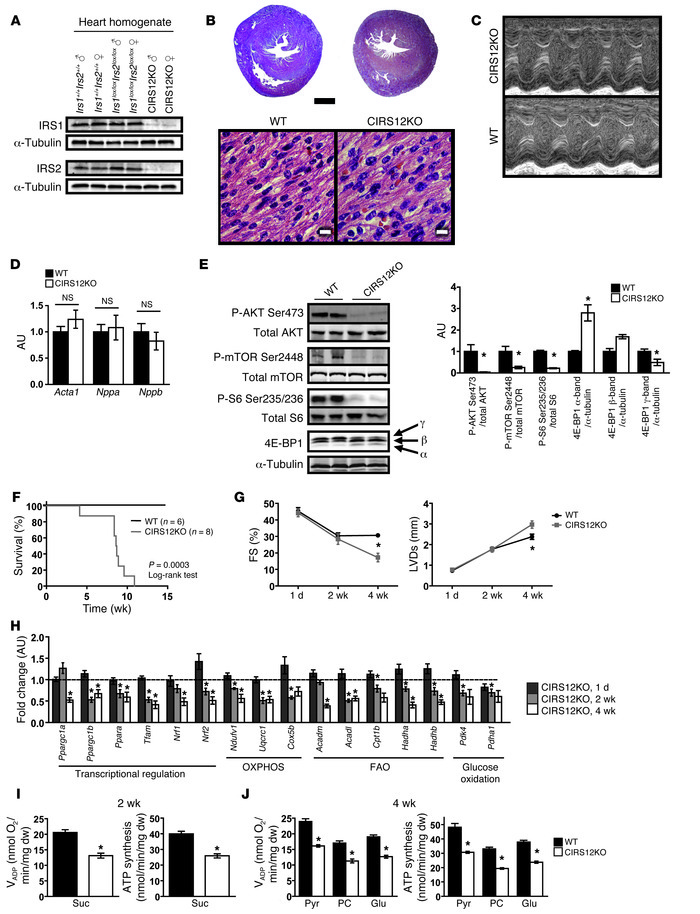 Mitochondrial dysfunction precedes age-dependent contractile dysfunction...