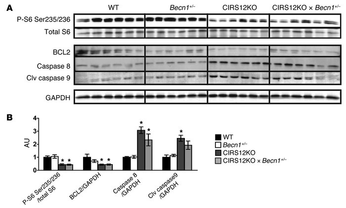 Impaired insulin signaling and increased proapoptotic signaling in CIRS1...