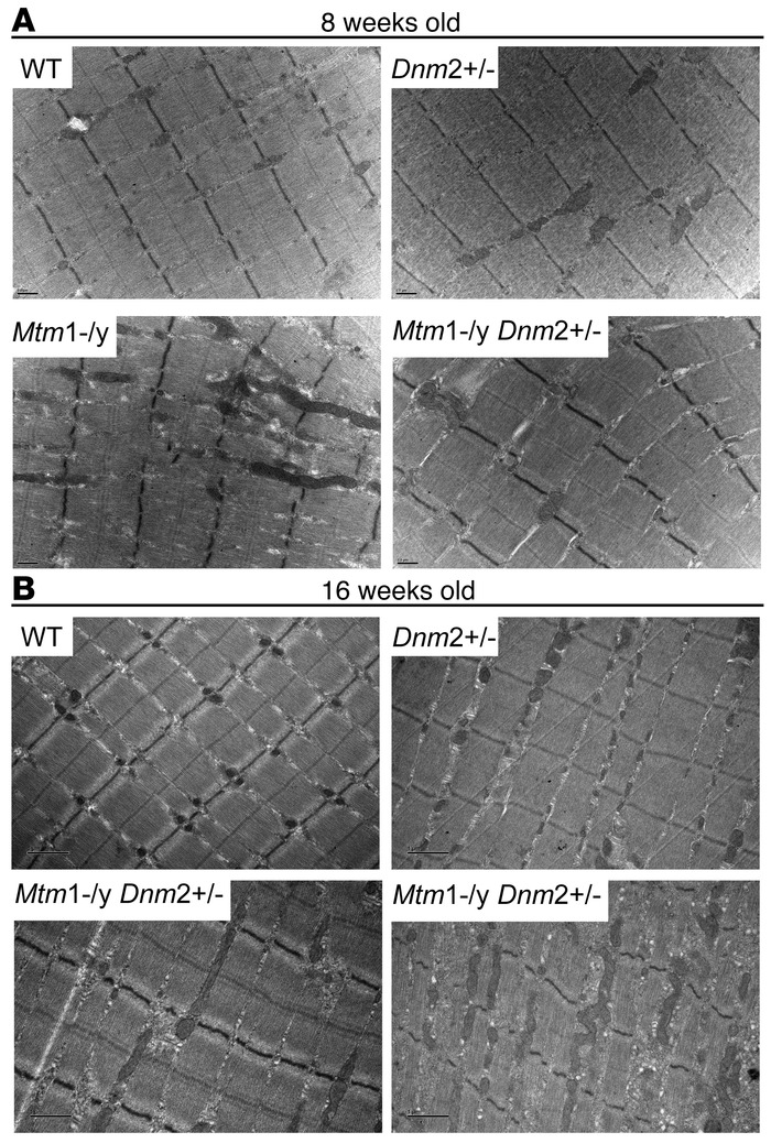 Improved muscle ultrastructure of Mtm1–/y mice with reduced DNM2 express...