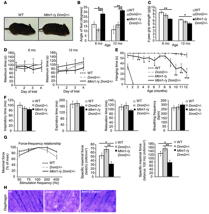 Long-term phenotype of Mtm1–/y mice with reduced DNM2 expression.   (A) ...