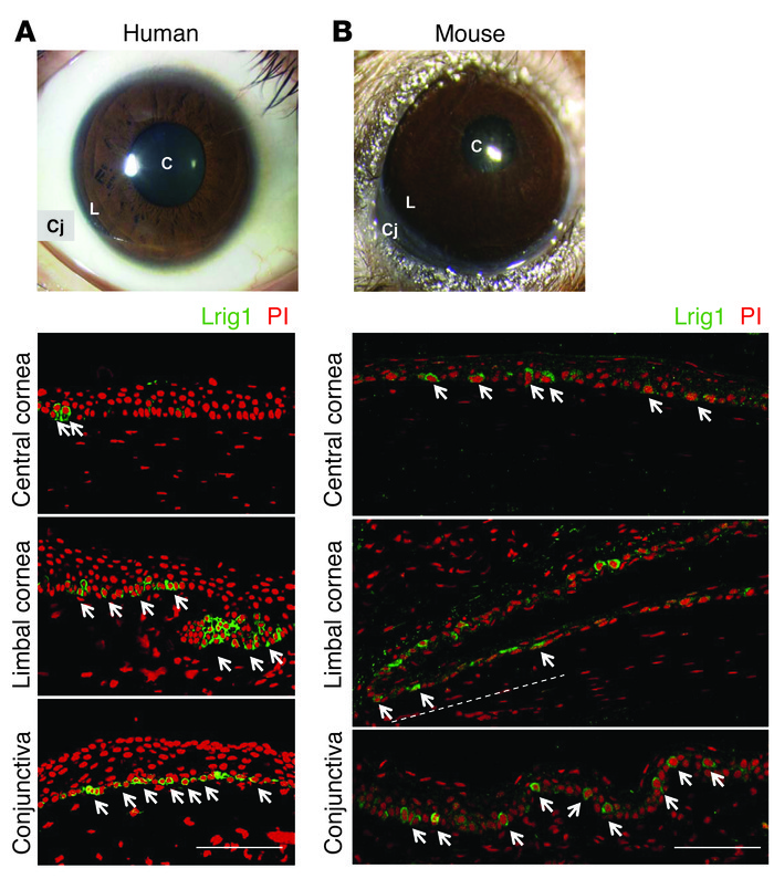 Expression of LRIG1 in the ocular surface epithelium (corneal, limbal, a...