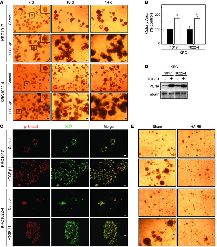 TGF-β1 stimulates KRC cell growth in 3D culture. (A) Compared with contr...