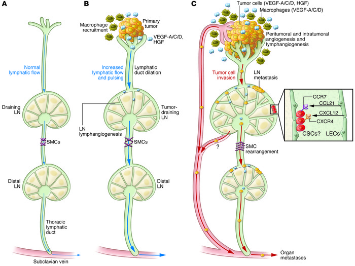 Jci Mechanisms Of Lymphatic Metastasis