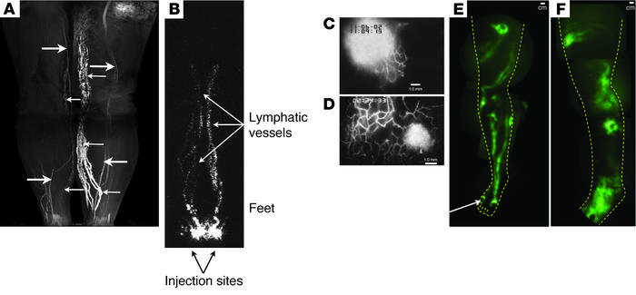 Examples of lymphatic imaging. (A) MR lymphography (indirect) of normal ...
