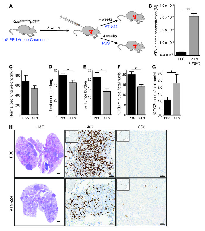ATN-224 as a single agent reduces tumor burden in a preclinical KrasG12D...