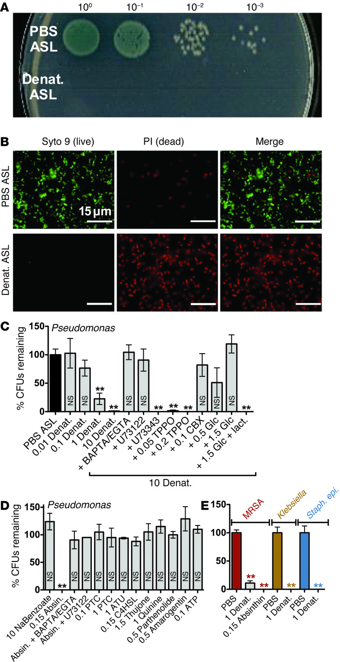 Denatonium/absinthin-sensitive T2Rs activate sinonasal epithelial cells ...