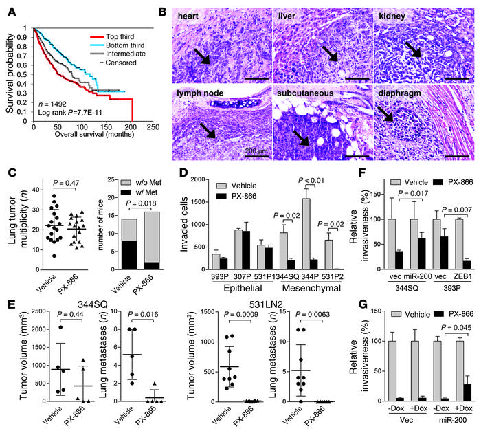 Mesenchymal lung adenocarcinoma cells are sensitive to PX-866. (A) Survi...