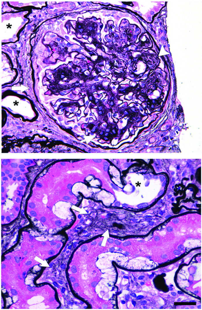 Photomicrographs showing fibrosis in the interstitium and glomerulus of ...