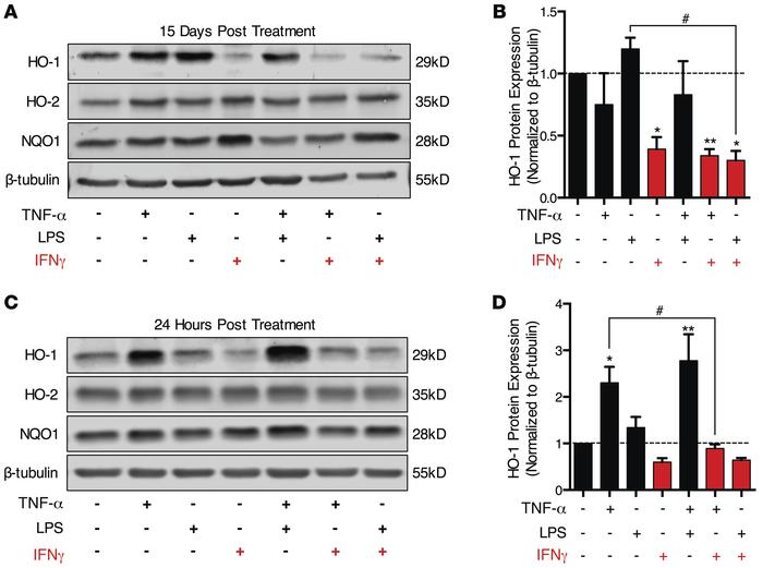 IFN-γ reduces HO-1 protein expression in primary human fetal astrocytes....