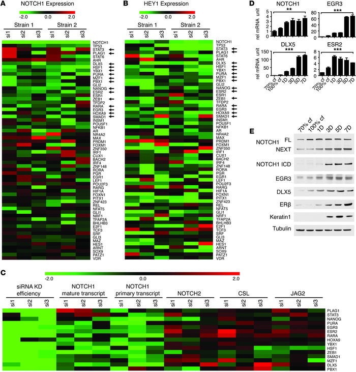 Identification of transcription factors that control NOTCH1 expression i...
