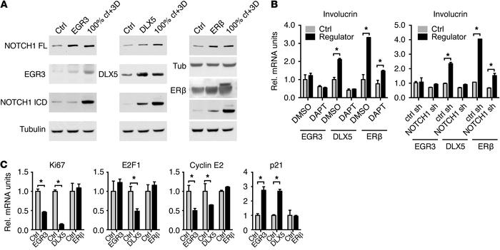EGR3, DLX5, and ERβ as regulators of NOTCH1 expression and function in H...