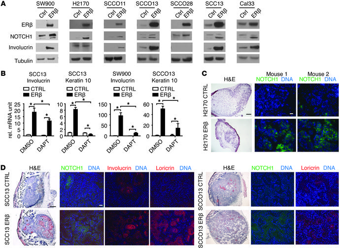 Elevated ERβ expression induces NOTCH1 expression and differentiation. (...