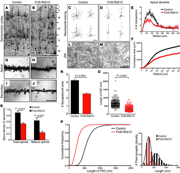 Dendritic and synaptic defects in neurons of the sensorimotor cortex in ...