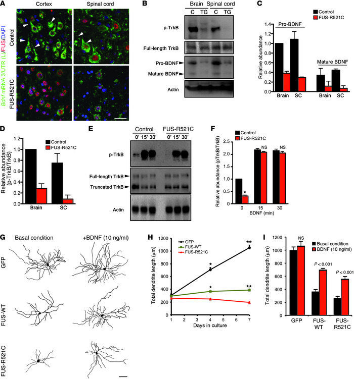 BDNF restores TrkB activation and partially ameliorates dendrite phenoty...