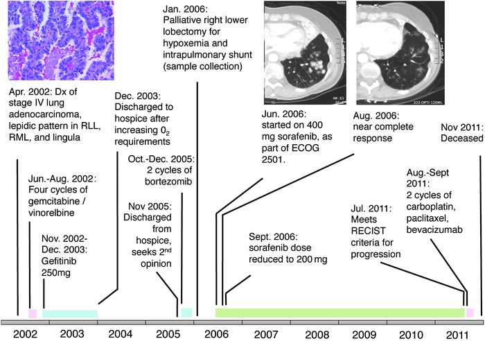 Time line of patient's lung adenocarcinoma diagnosis, treatment, and res...