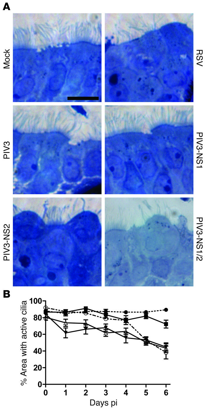Expression of RSV NS2 by PIV3 in HAE cultures mimics RSV-induced cytopat...