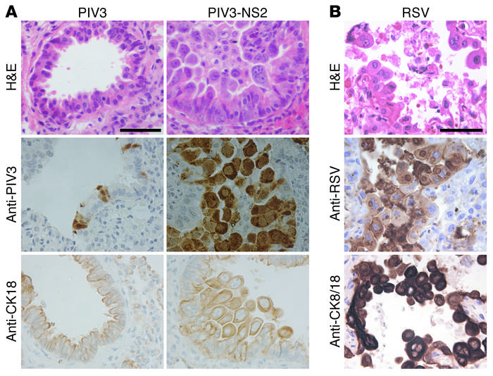 Shed epithelial cells infected by PIV3-NS2 into hamster lower conducting...