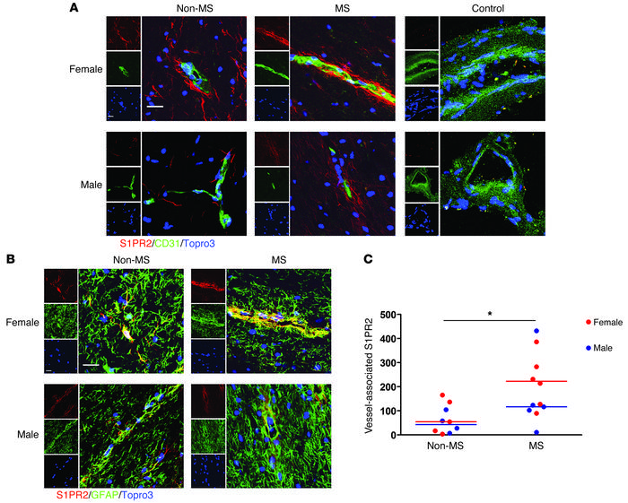 BBB expression of S1PR2 is increased in MS. (A) Endothelial cell (CD31, ...