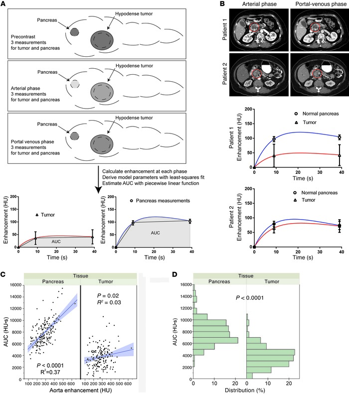 Deriving transport properties of pancreatic tumors from routine CT scans...