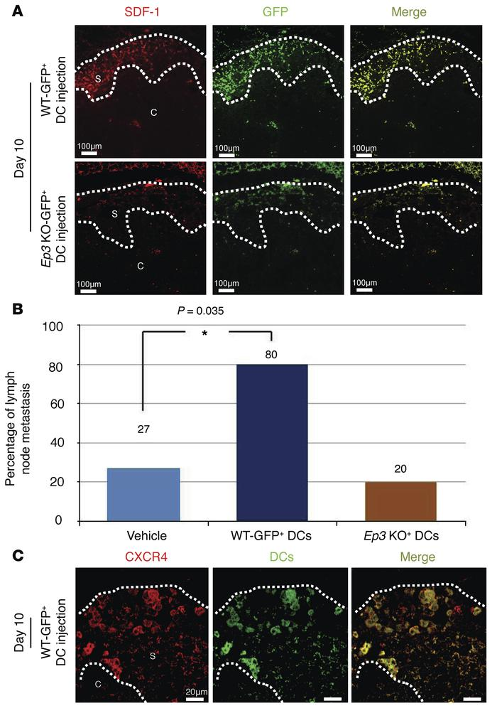 COX-2–derived PGE2-EP3 signaling induces LNM and lymphangiogenesis by fa...