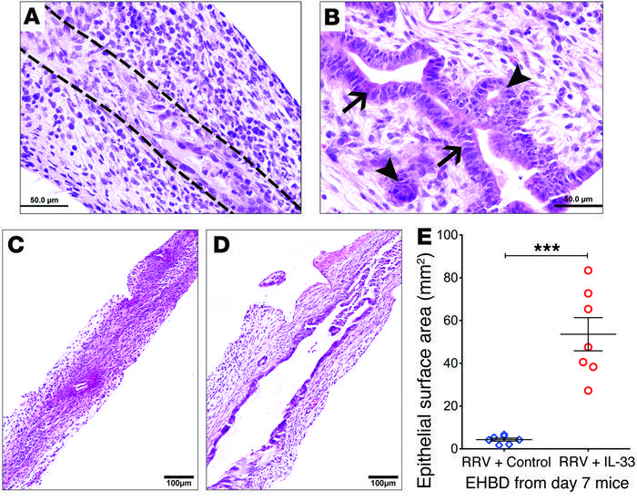 IL-33 promotes epithelial repair in experimental biliary atresia. The ep...