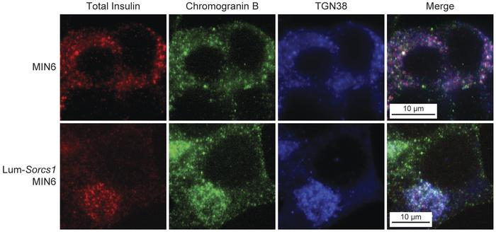 Total insulin is stalled in the TGN in Lum-Sorcs1–expressing MIN6 cells....