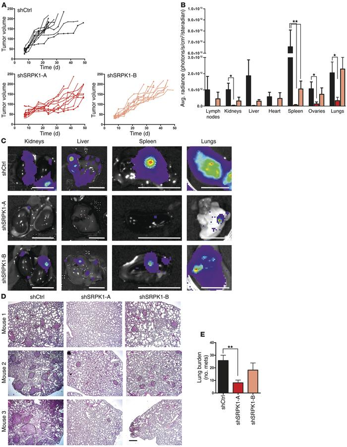 SRPK1 is required for BC metastasis in vivo. MDA-MB-417.5 cells were tra...