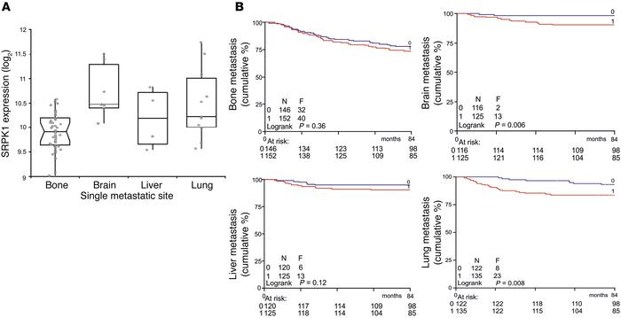 High SRPK1 expression is associated with preferred metastasis to lung an...