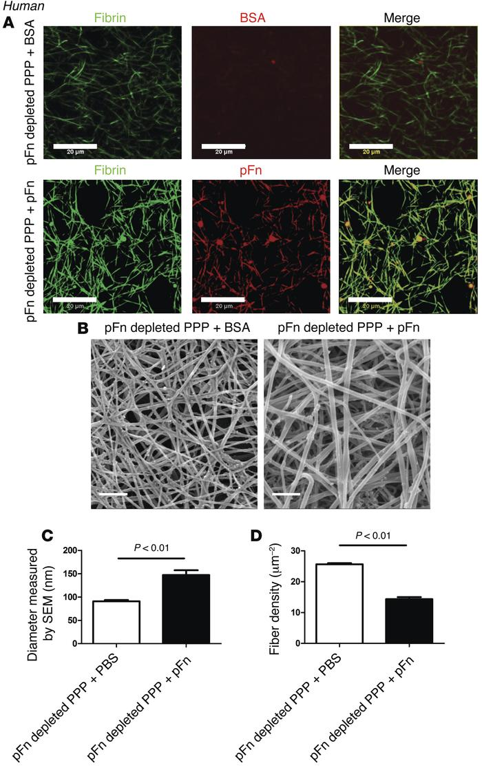 pFn controls the diameter of human fibrin fibers. (A) Confocal images of...