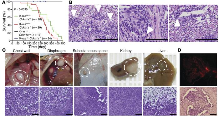 p21 loss confers metastatic capacity to lung adenocarcinomas in K-rasLA1...