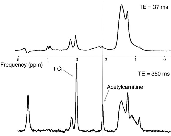 Comparison of short (TE = 37 ms) and long-TE (TE = 350 ms) spectra from ...
