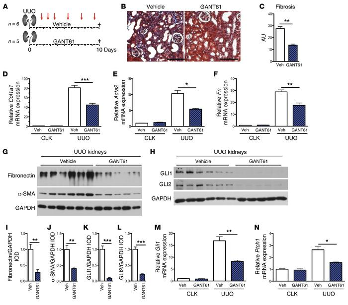 Targeting of GLI proteins by GANT61 ameliorates renal fibrosis following...