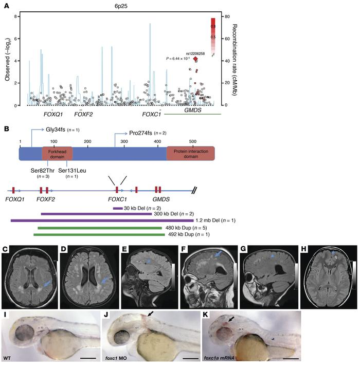 Aberrant FOXC1 function causes CSVD in patients and cerebral hemorrhage ...